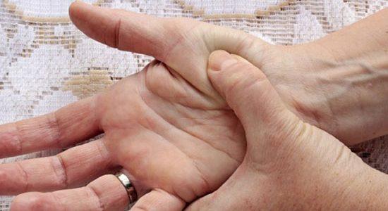 ¿Cómo pueden ayudar los deshumidificadores a los pacientes con artritis?